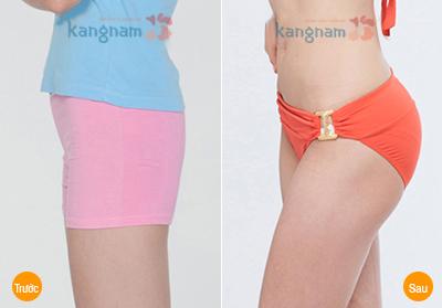 Kết quả nâng mông nội soi tại Kangnam
