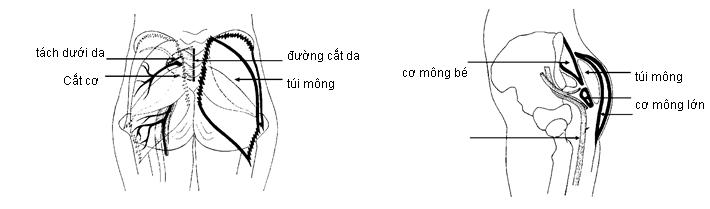 Phẫu thuật nâng mông diễn ra an toàn với công nghệ nội soi
