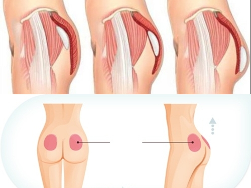 Những vị trí có thể đặt túi độn mông