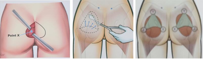 Trong phẫu thuật nâng mông nội soi an toàn , vết rạch nhỏ và được che giấu kỹ nên không để lại sẹo xấu