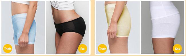 Khách hàng Kangnam chia sẻ kết quả nâng mông chảy vệ