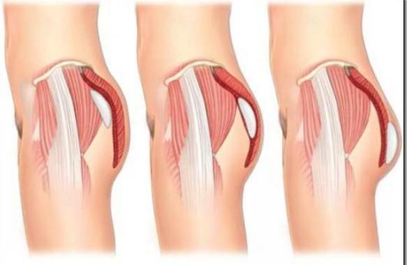 Phẫu thuật nâng mông nội soi an toàn, hiệu quả chỉ có ở Thẩm mỹ viện Kangnam1