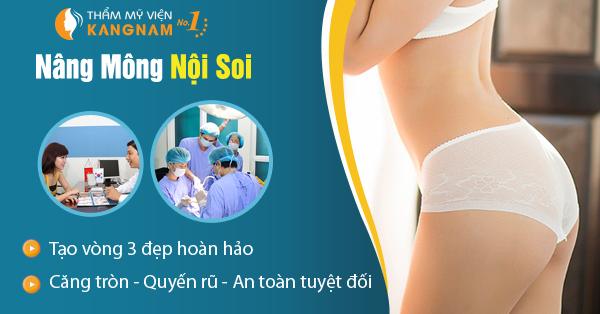 Nâng mông nội soi tại BVTM Kangnam