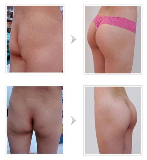 Mông bị lệch bên to bên nhỏ có nên áp dụng nâng mông nội soi không?3
