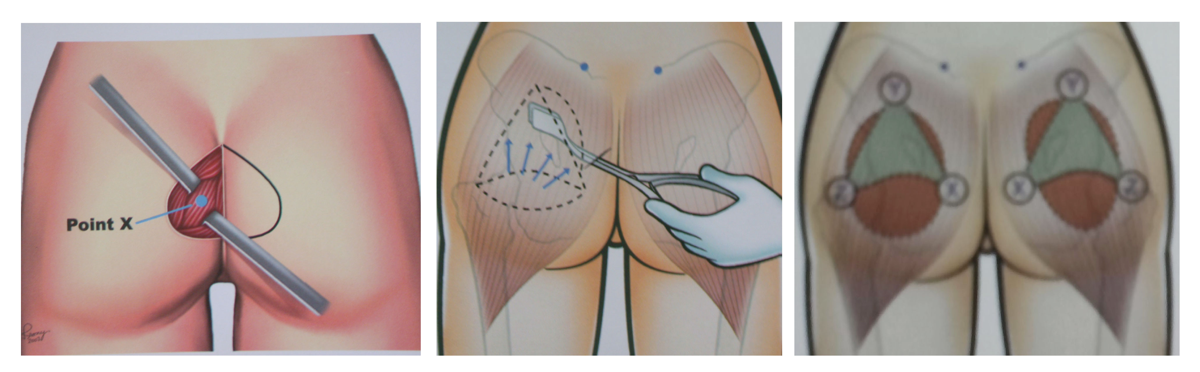 Nâng mông nội soi thì túi độn được đặt ở vị trí nào?2