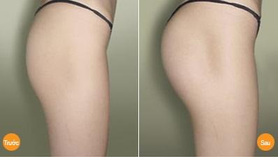 """Bí quyết """"vàng"""" cho mông to tròn, tạo dáng cơ thể chữ S5"""