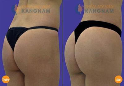 """Biến hóa mông chảy xệ thành mông đẹp bằng quần """"bóp dáng""""6"""