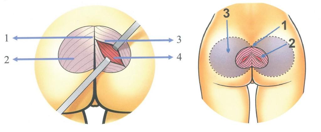 Nên làm gì để cặp mông không còn chảy xệ?5