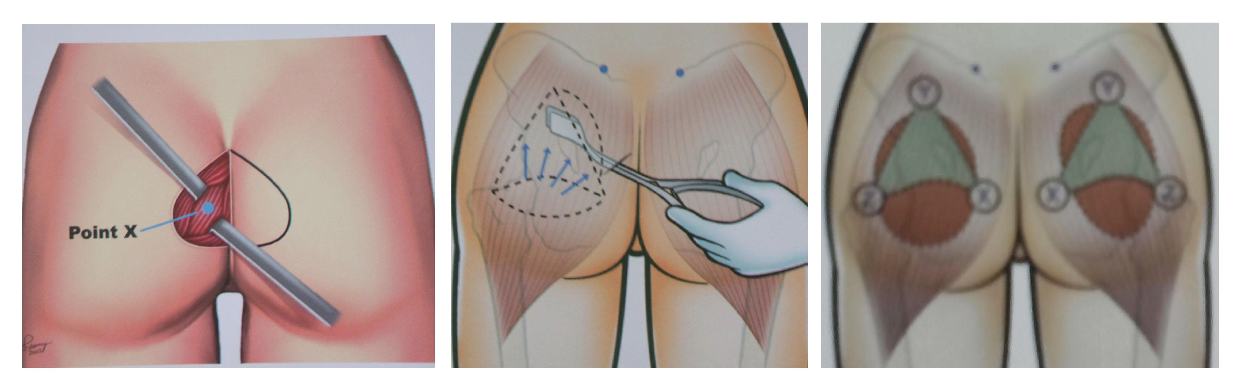 Xóa tan nỗi ám ảnh vòng 3 xẹp lép bằng kỹ thuật nâng mông nội soi5