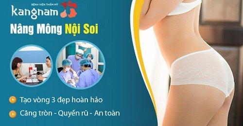 Nâng mông nội soi tại Kangnam