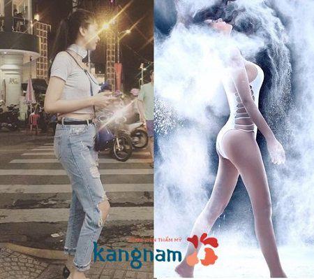 Người mẫu Kim Anh nâng mông bằng túi độn cho vòng 3 tròn đầy