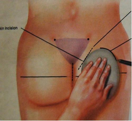 Tìm hiểu kỹ hơn về độn mông bằng túi gel siêu dính5