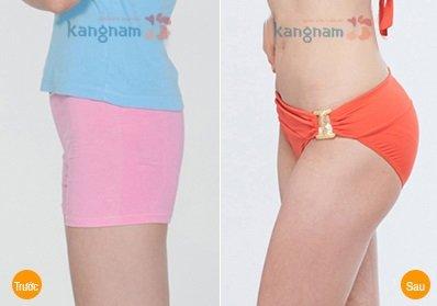 Kết quả hình ảnh cho site:nangmongnoisoi.vn nâng mông bằng chất liệu gì