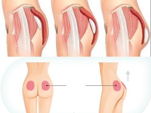 Những vị trí có thể đặt túi nâng mông