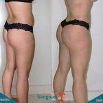 Cùng tìm hiểu nâng mông bằng mỡ tự thân có tốt không?