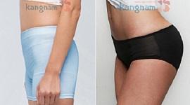 Giải pháp giúp bạn nâng mông không phẫu thuật