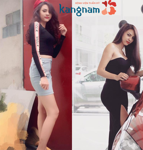 Khách hàng Kangnam chia sẻ kết quả độn mông nội soi