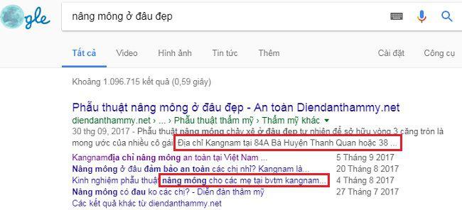 Kangnam nằm trong TOP những địa chỉ nâng mông uy tínvà an toàn nhất tại Hà Nội