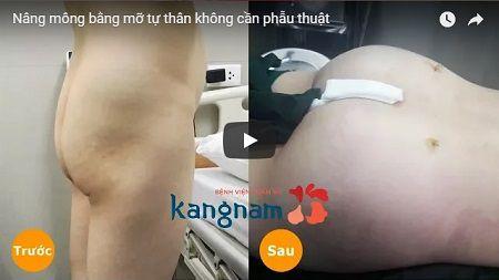 [CLICK XEM] Toàn bộ quá trình nâng mông có 1 không 2 tại Kangnam
