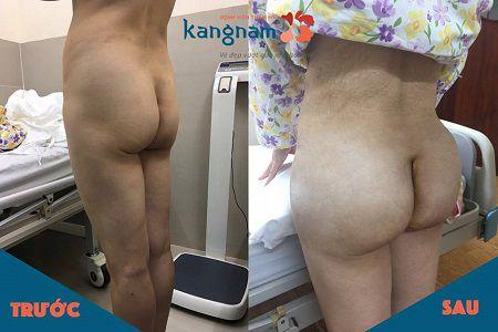 Phẫu thuật nâng mông nội soi có tốt không?