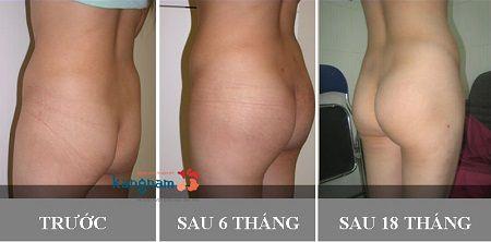 phẫu thuật nâng mông bằng mỡ tự thân có an toàn không3