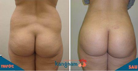 Phương pháp nâng mông bằng mỡ tự thân có hiệu quả không?