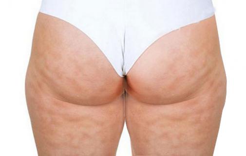 Vùng mông bị xơ hóa do sử dụng chất làm đầy