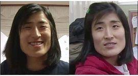2 ca phẫu thuật thẩm mỹ Hàn Quốc ấn tượng nhất từ trước đến nay